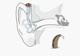 Contour d'oreille